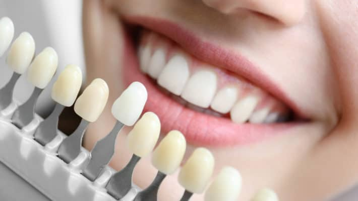 cosmetic-dentistry-whiter-teeth